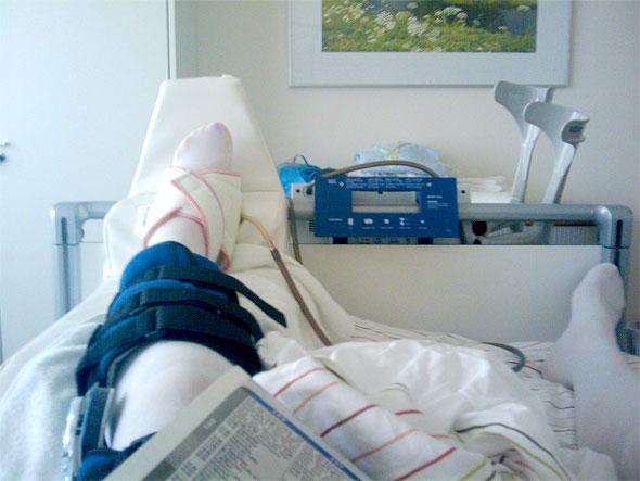 ≡ Weber B Fraktur ▷ Erfahrungsbericht aus Patientensicht